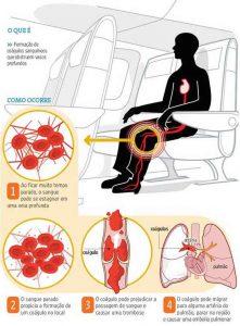 Síndrome do Viajante - Trombose