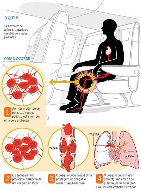Síndrome do Viajante - Trombose venosa | 1001 Dicas de Viagem